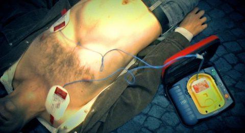 Schock! Beim Drücken der orangefarbenen Schock-Taste jagt ein Stromstoß durch den Patienten. Danach müsste er wieder erwachen. Hier beim Demo-Defi passiert dem Schauspieler natürlich nichts.